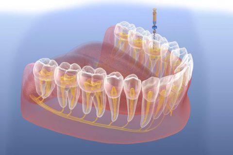Endodonzia conservativa